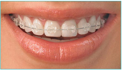 Clear Ceramic Braces Stourbridge