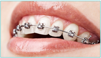 Metal Braces Stourbridge