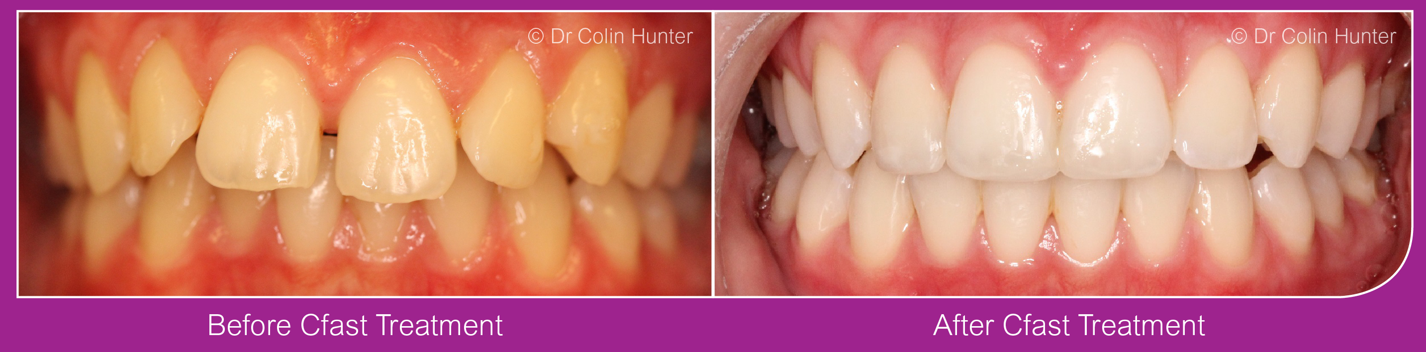 CFast Invisible Braces Kilbirnie, Beith, Dalry