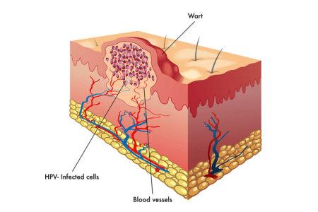 Electrosurgery for Verrucas
