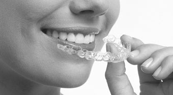 Straighten Teeth with Invisalign