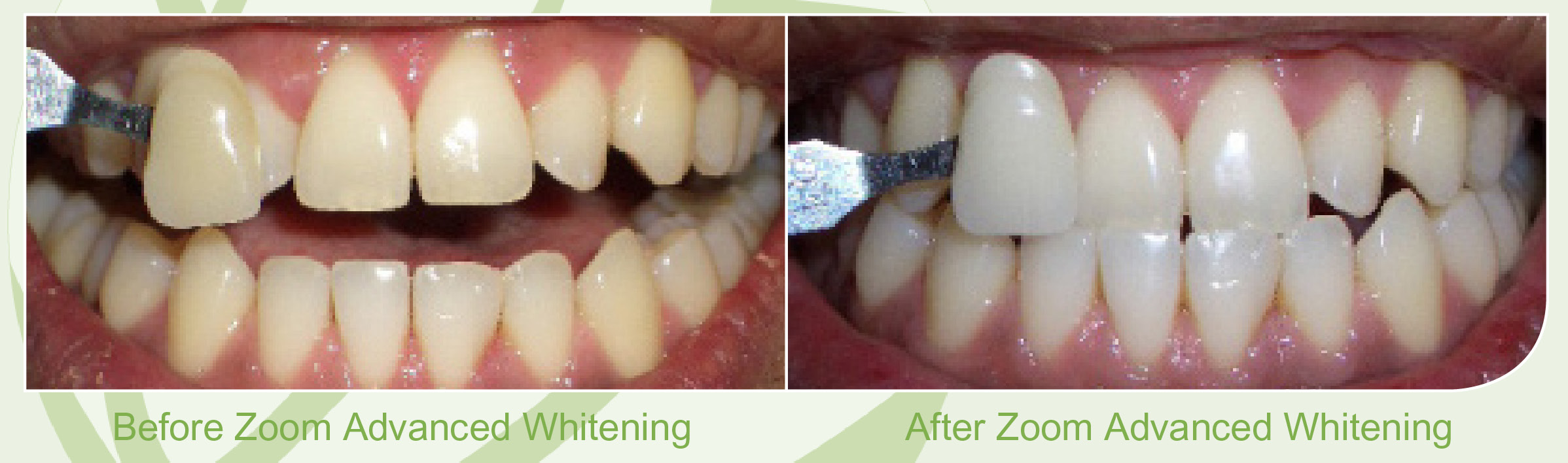 Zoom Whitening Skegness