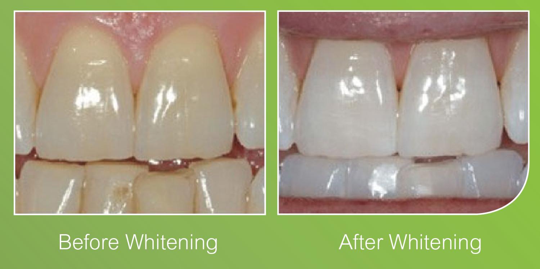 Teeth Whitening Barnes, Putney, London