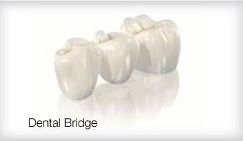 dental implant barnes london