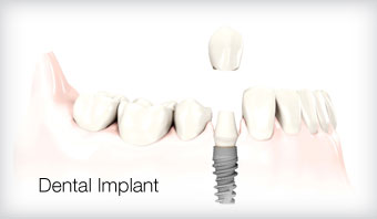 dental implants barnes london
