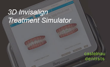 Why we use a 3D Intra-oral Scanner?