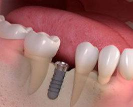 Solutions to Missing Teeth