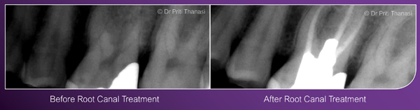Before and after root canal treatment example 2