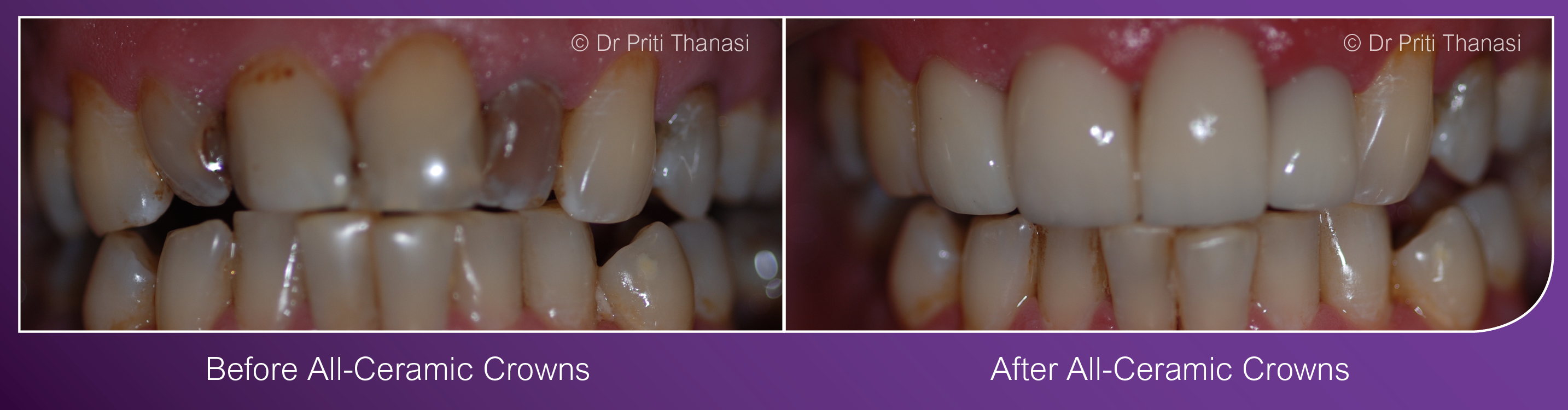 Cosmetic Dentist Dental Implants Leicester